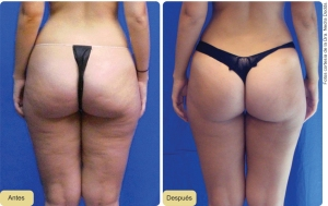 Cellulite treatment London Dr Kacem Cosmetic Doctor