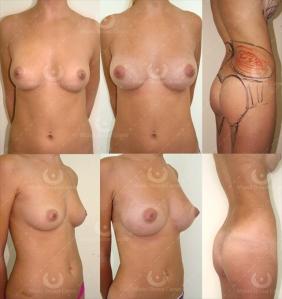 Fat Transfer Breast Augmentation, London Dr Kacem