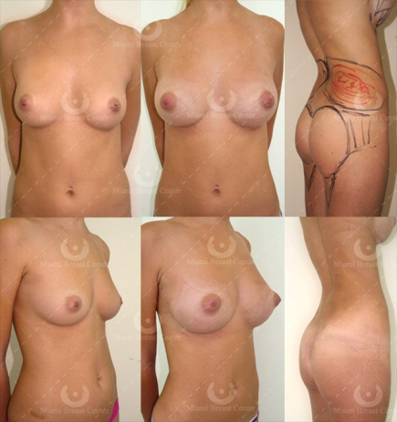 Fat Transfer Breast Augmentation, London Dr Kacem