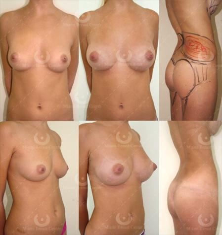 Fat Transfer, Breast Augmentation, London