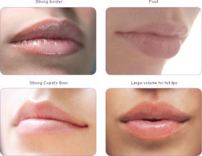 lip injections london, dr kacem