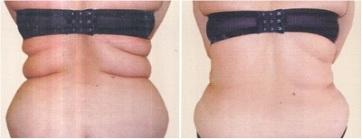 Non-surgical Liposuction cost Prague