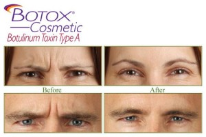 Botox injection cost