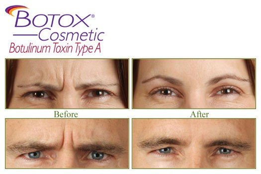 Botox results London, Botox Before After, Face Botox|Lip Botox, Botox Cost, Botox near me, Botox Clinic.
