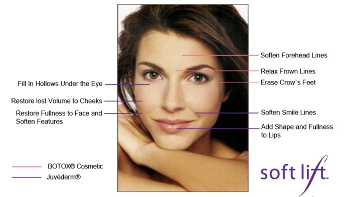 Botox SoftLift