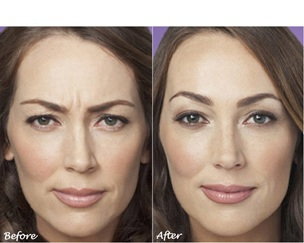 botox injections before after