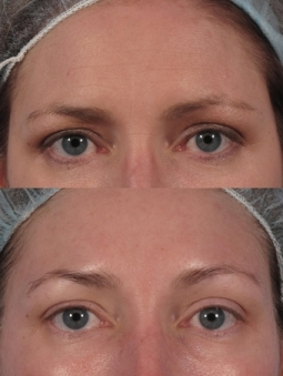 Non Surgical Eye lift, london, dr kacem