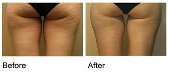 Cellulite before after Dr Kacem