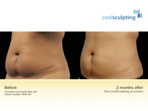 coolsculpting before after London Dr Kacem