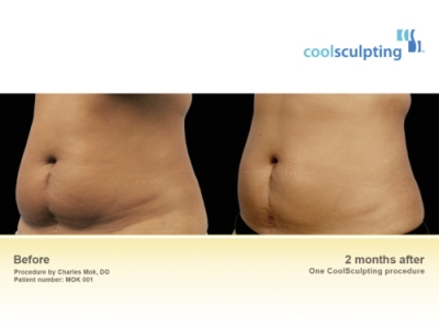 Coolsculpting Geneva