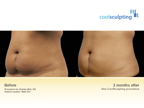 Coolsculpting Dublin