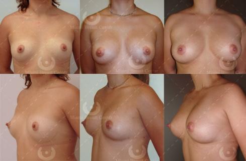 fat transfer breast augmentation Geneva
