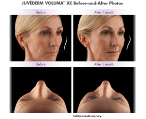 Non Surgical Facelift cost