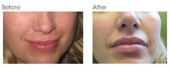 Lip injections, london, dr kacem