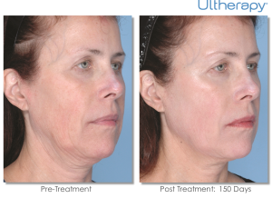 Ultherapy before after London Dr Kacem