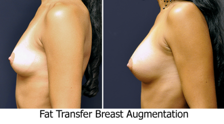 Fat Transfer Breast Augmentation, London, dr Kacem