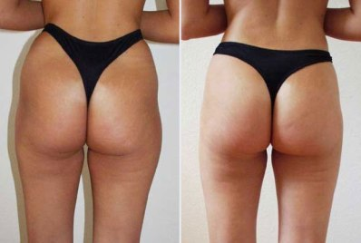 Liposuction London