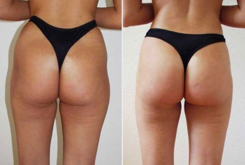 Non Surgical Liposuction